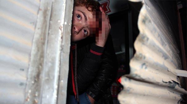 Adana'da Suriyeli Esnaf, Başka Esnafı Bıçakladı!