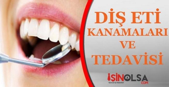 Diş Eti Kanamaları ve Tedavisi
